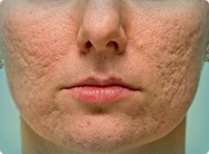 woman-with-acne-scars-ben-001