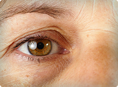 woman-with-eye-wrinkles-ben-002